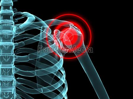 x ray highlighted skeletal shoulder