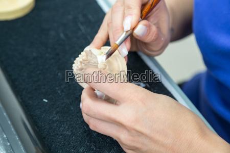 zahntechnikerin llevaba restauraciones ceramicas en