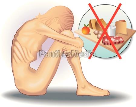 ilustracion medica simbolica del trastorno alimentario