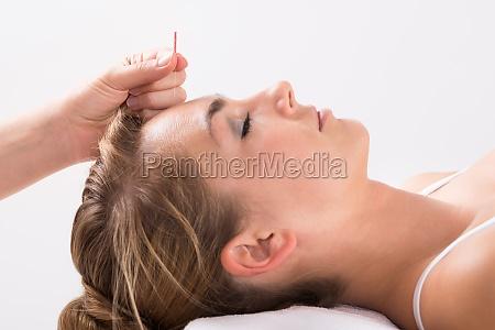 mano realizar la terapia de acupuntura