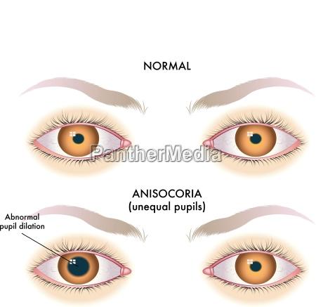 anisocoria unequal pupils enlarged pupils abnormal