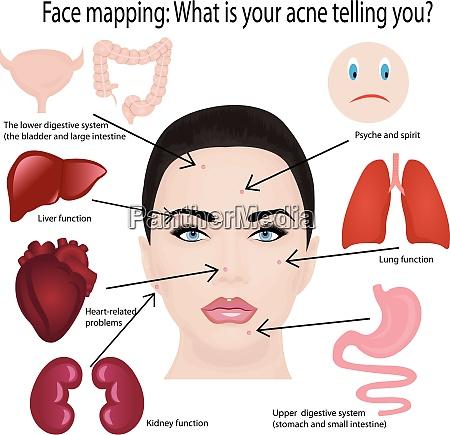 mapeo facial lo que tu acne