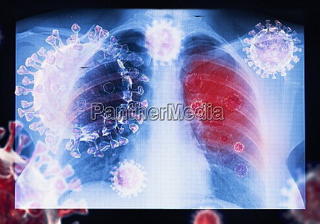 infeccion por virus coronavirus covid 19